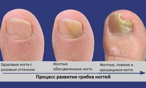 По мере разрастания патологии происходит изменение ногтевой пластины (уплотнение, изменение цвета), кожи вокруг поражённого участка