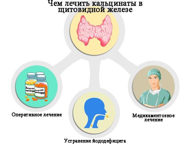 Чем лечить кальцинаты в щитовидной железе