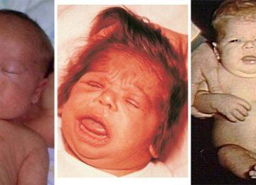 Симптомы и развитие у детей болезни кретинизм