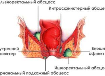 Болезнь хронический парапроктит