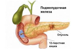 Схема рака поджелудочной железы