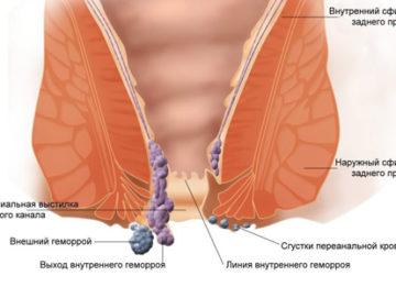 Как проводится лечение тромбоза геморроидального узла?