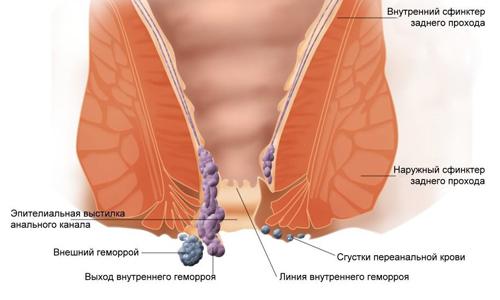 Схема тромбоза геморроидального узла