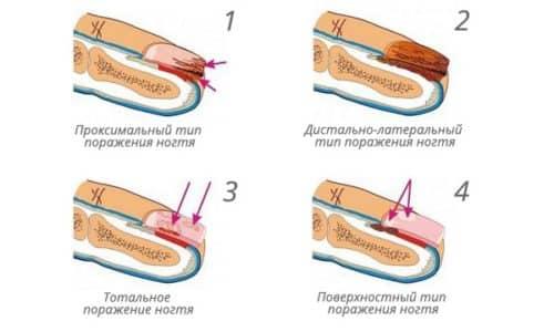 Для того чтобы точно определить наличие грибка на ногах, пальцах, ногтевой пластине, необходимо уметь определять его на разных стадиях развития. Все виды грибков поражают ногти, ложе, однако, с различными симптомами