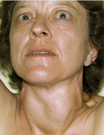 Симптомы тиреоидита Хашимото у женщин