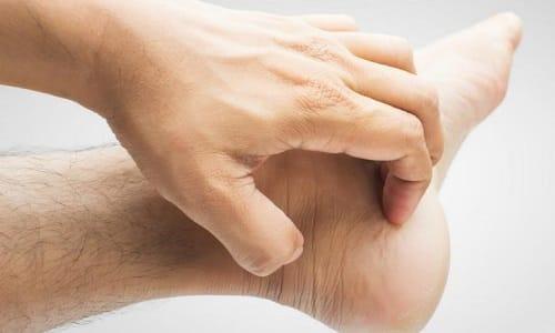 При микозе ногтей грибок распространяется на боковые части стоп, при этом появляется зуд, жжение