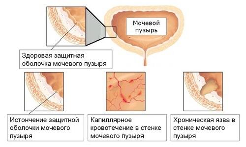 Интерстициальный цистит - достаточно опасная форма, при которой воспаление распространяется на слизистую оболочку и мышечный слой
