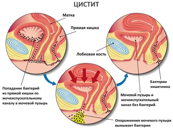 механизм воспаления мочевого пузиря