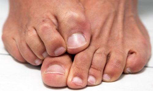 Онихомикоза, то есть грибковая инфекция, – это достаточно опасное заболевание ногтей на руках и ногах, которое провоцирует разрушение ногтевой пластины
