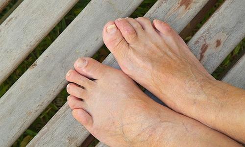Онихомикоз – распространённое заболевание нижних и верхних конечностей