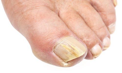 Распознать грибок ногтей на ногах достаточно непросто, но если человек внимательно относиться к своему здоровью и тщательно следит за своим телом, тогда он сможет заметить изменения, происходящие на ногтях и коже ног