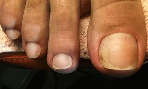 Онихомикоз, грибковая инфекция на ногтях и стопах, даже на начальной стадии может доставить множество хлопот
