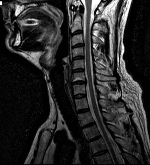 Фото: грыжа шейного отдела на рентген снимке