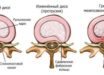 Грыжа шейного отдела позвоночника: симптомы, лечение и способы профилактики