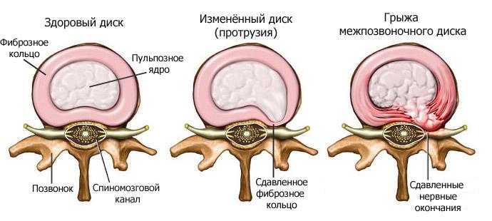 Фото: несколько стадия развития грыжи позвонков шейного отдела
