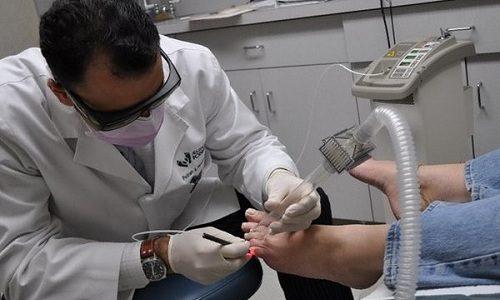 Один из самых действенных методов устранения вросшего ногтя — это лечение лазером
