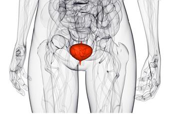 Причины, диагностика и лечение геморрагического цистита