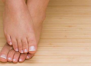 Как лечить вросший ноготь на ноге