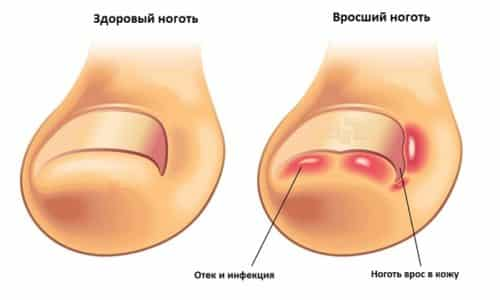 Неправильный уход за ногтями, ношение слишком узкой обуви ведет к развитию такого заболевания как онихокриптоз, или более известному в народе состоянию – вросшему ногтю