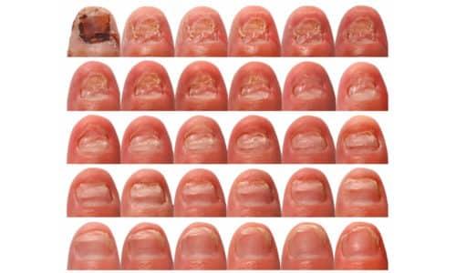 Онихомикоз, грибковой заболевание ногтевой пластины о котором вряд ли хочется рассказывать близким людям, а уж тем более показывать