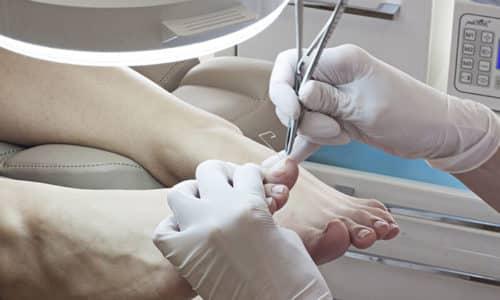 Классическая операция применяется в самых редких случаях