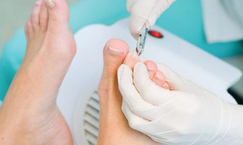 В медицине патология формы ногтевой пластины и последующим врастанием в эпителий получила название онихокриптоз