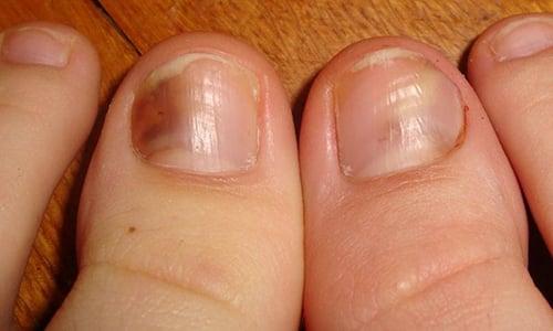 Появление трещин или пятен на ногтевой пластине большого пальца ноги свидетельствует о симптомах развития онихомикоза