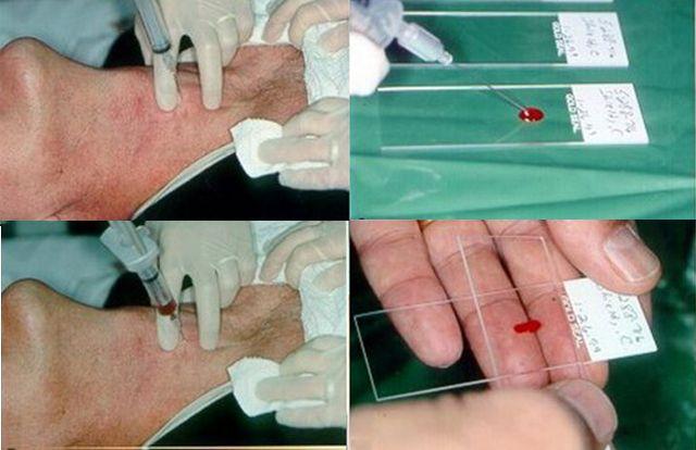 Методика проведения тонкоигольной пункционной биопсии щитовидной железы