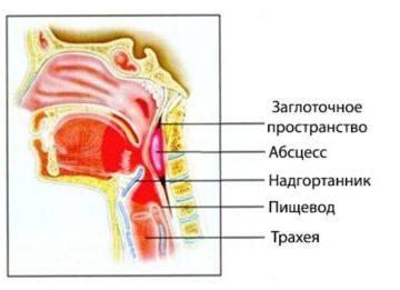 Симптомы и причины развития заглоточного абсцесса