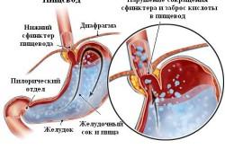 Рефлюкс - последствие панкреатического блока