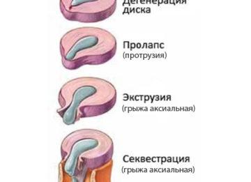 Секвестрированная грыжа позвоночника. Насколько опасна патология?