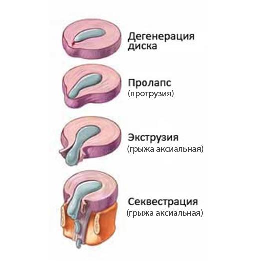 Фото: стадии развития секвестрированной грыжи