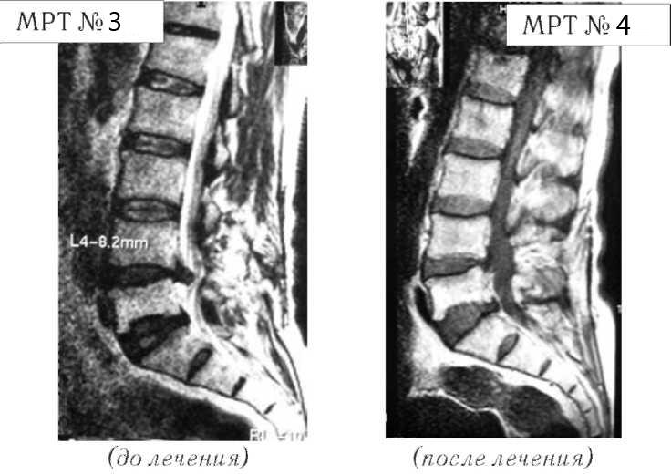 Фото: Секвестрированная грыжа до лечения и после