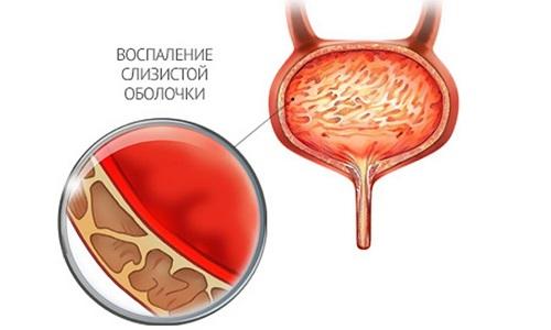 Цистит у мужчин возникает на фоне инфекций яичек, их придатков, а также уретры и простаты