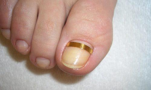 Установка скоб при онихокриптозе позволяет уменьшить отёчность, снизить болевые симптомы, убрать красноту, обеспечить постепенную коррекцию роста деформированного ногтя