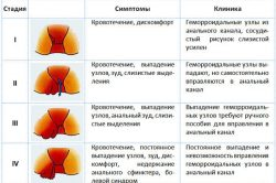 Симптомы геморроя на разных стадиях
