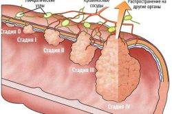 Классификация (стадии) рака прямой кишки