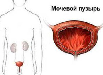Принципы лечения воспаления мочевого пузыря у мужчин